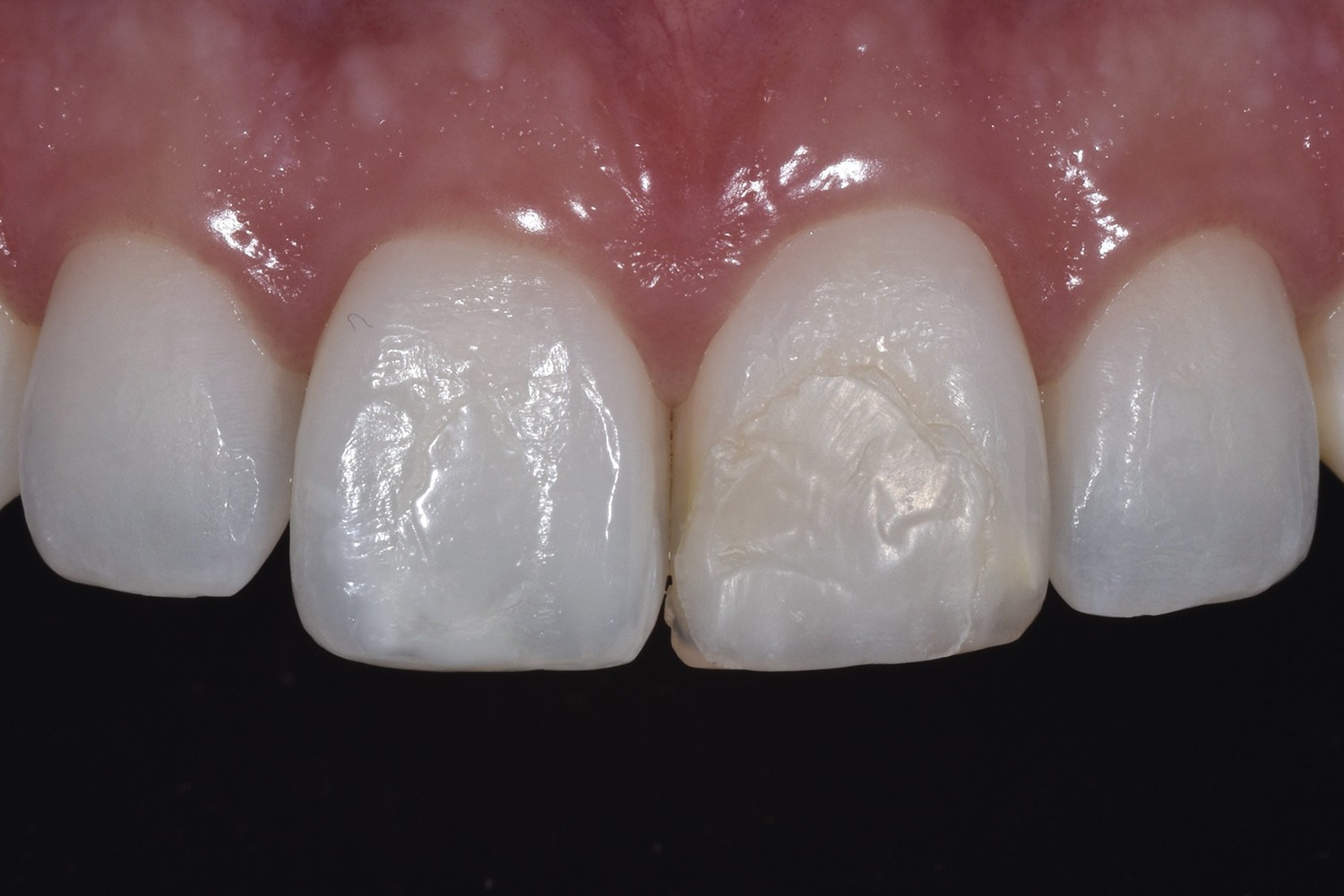 Conservative clinical solutions to molar incisor hypomineralization