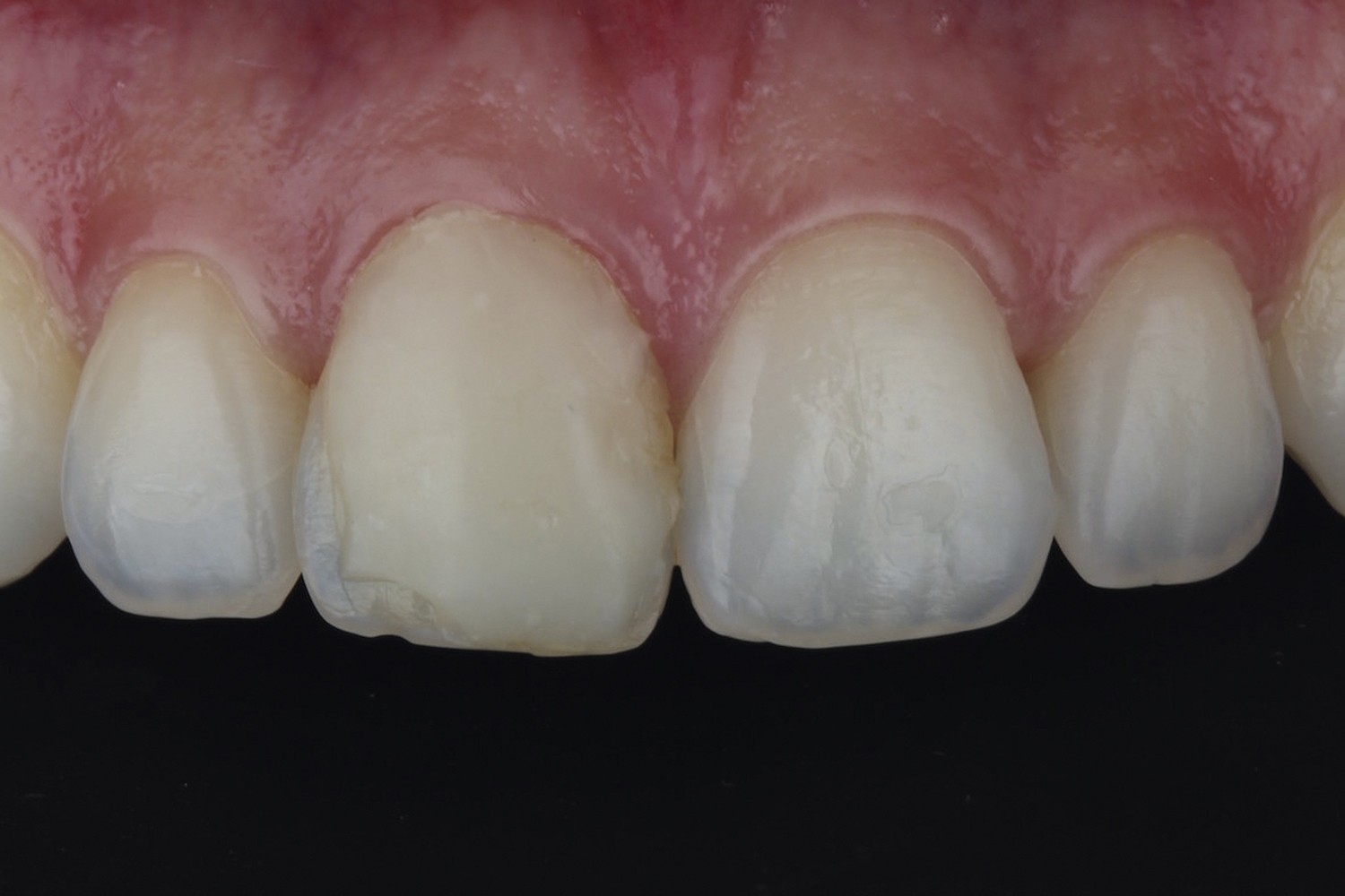 Replacement of single composite resin in a maxillary central incisor: Case report