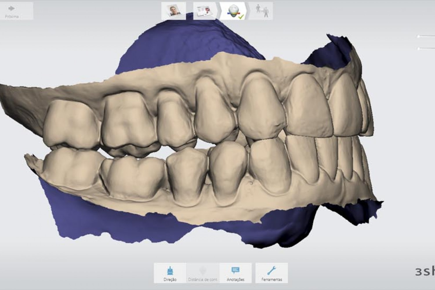 Ceramic restorations: Clinical-laboratorial communication improved 