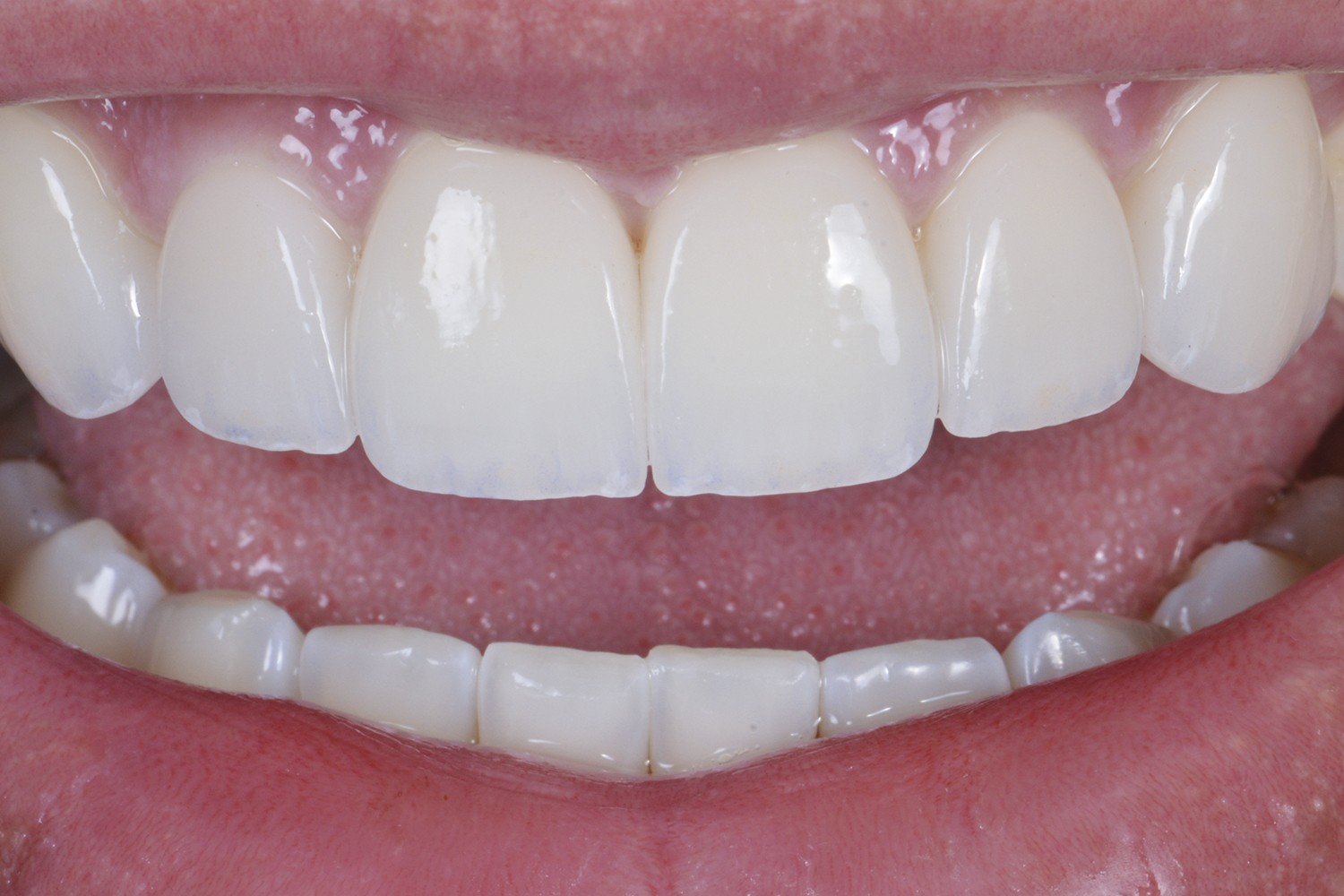 Dental bleaching associated with minimally invasive ceramic veneers: clinical case report