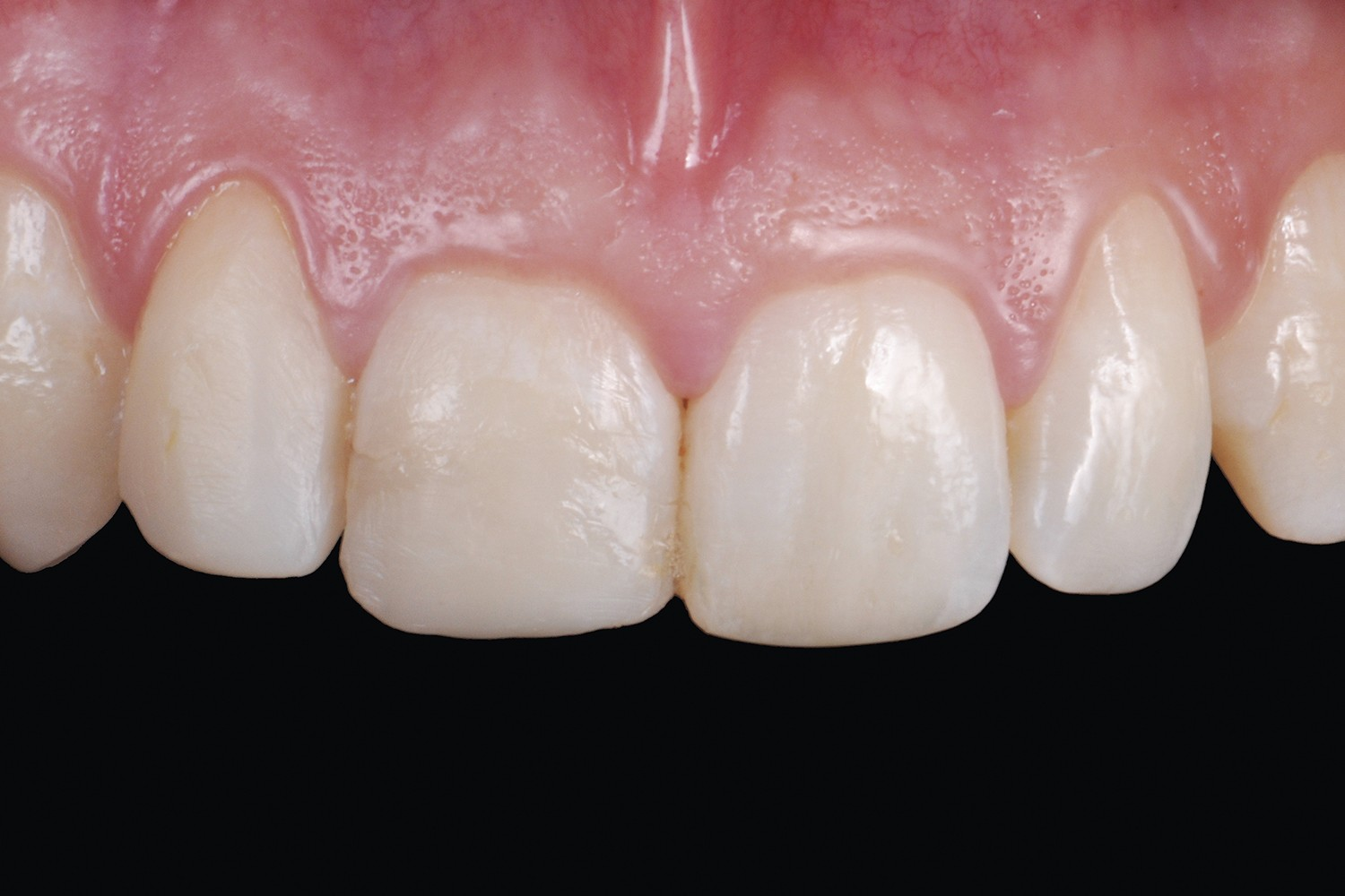 Anterior traumatic dental injuries: Ultra-conservative treatment
